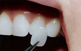 https://qualitydentalcare.com.au/wp-content/uploads/2021/08/cosmetic-004.png  COSMETIC SERVICES cosmetic 004