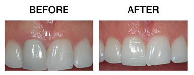 https://qualitydentalcare.com.au/wp-content/uploads/2021/08/cosmetic-005.jpg  COSMETIC SERVICES cosmetic 005