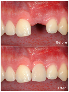 https://qualitydentalcare.com.au/wp-content/uploads/2021/08/tooth-001.jpg  TOOTH REPLACEMENT SERVICES tooth 001