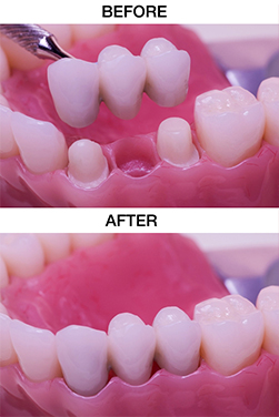 https://qualitydentalcare.com.au/wp-content/uploads/2021/08/tooth-002.jpg  TOOTH REPLACEMENT SERVICES tooth 002