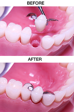 https://qualitydentalcare.com.au/wp-content/uploads/2021/08/tooth-003.jpg  TOOTH REPLACEMENT SERVICES tooth 003