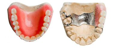 https://qualitydentalcare.com.au/wp-content/uploads/2021/08/tooth-005.jpg  TOOTH REPLACEMENT SERVICES tooth 005